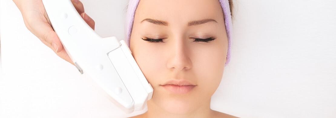 zdjęcie laserowe leczenie trądziku