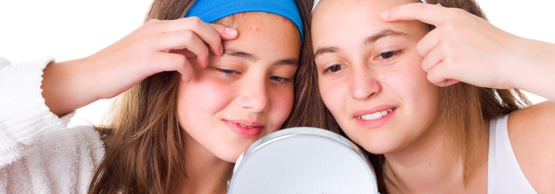 zdjęcie nastolatek z trądzikiem