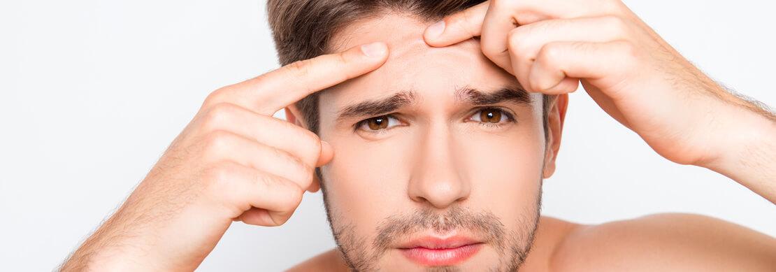 zdjęcie mężczyzny z problemami skórnymi