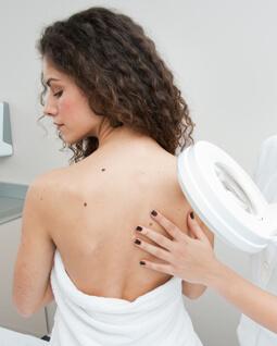 zdjęcie trądziku na plecach